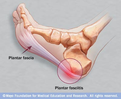 Picture of a foot showing the Heel area in pain
